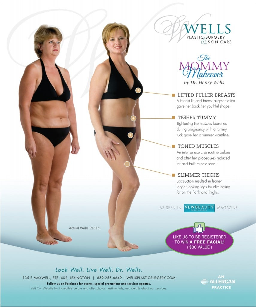 our patients story this month features maries mommy makeover 5e9577e4604c7